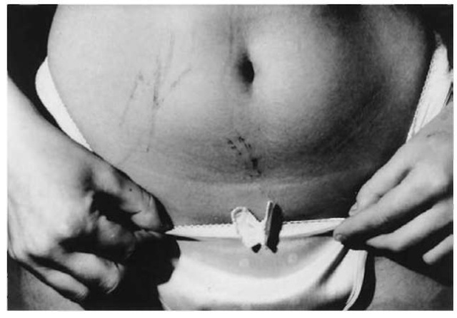 Self-inflicted injuries from a serrated kitchen knife on the lower abdomen of a young woman. She reported her ex-lover to the police in revenge for having been left and falsely claimed that he had raped her. The cuts are equally superficial and do not penetrate the skin in spite of their considerable length and the curved body surface.