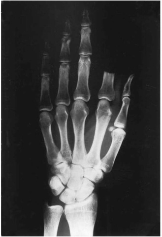 Self-mutilation for the purpose of insurance fraud. Radiograph of the left hand exhibiting a complete proximal amputation of the index finger at a right angle to its axis and without any injury to the adjoining fingers, allegedly caused by a misplaced stroke of the axe when chopping wood.
