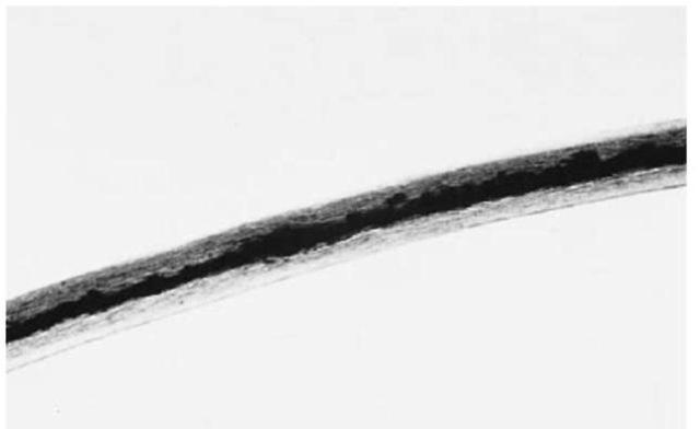 A human beard hair (100 x).