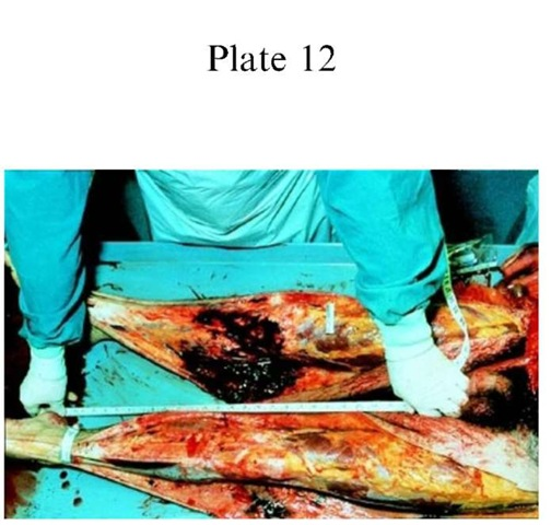 Plate 12 CAUSES OF DEATH/Traffic Deaths Subcutaneous dissection of the legs to determine accurately the level of impact.