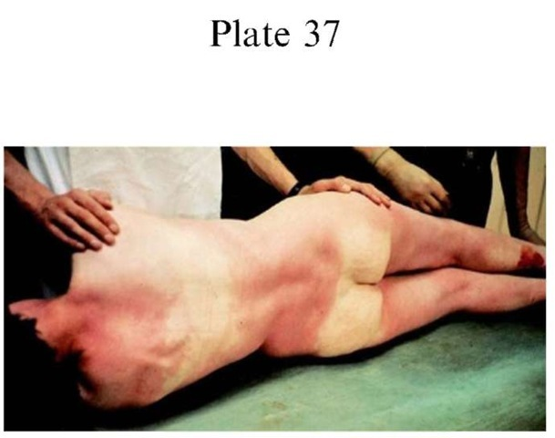 Plate 37 PATHOLOGY/Postmortem Changes hypostasis in a body that has been lying on the back for 12h.