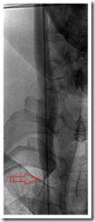RIJV angiogram 01