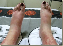 01 Gaelyn's swollen feet Pretoria SA (1024x768)
