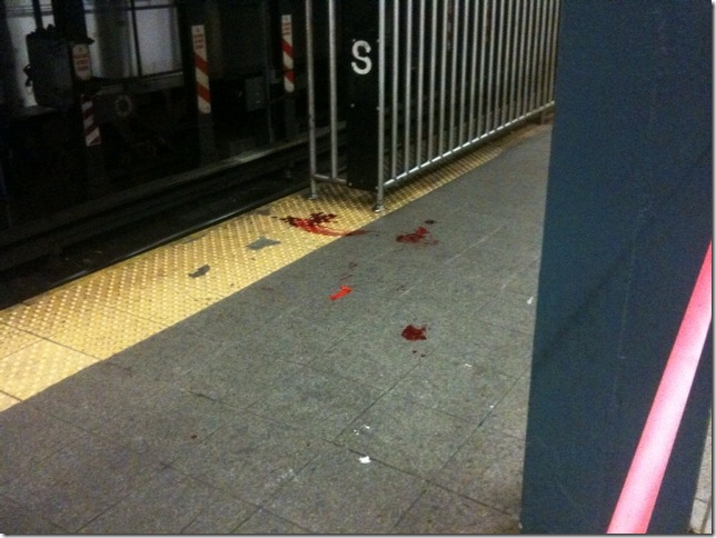 18 year old student struck by train at Union Square, 14th street.