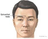 epifold