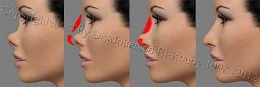 saddel nose