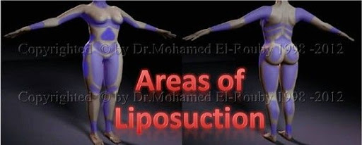 areas of liposuction