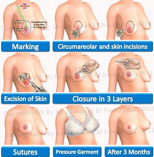 step of breast lifting