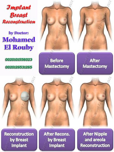 prosthesis breast reconstruction