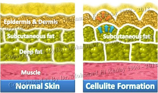 pathology of cellulite formation