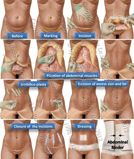 steps of abdominoplasty