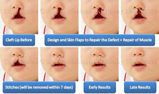 steps of cleft lip
