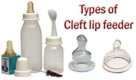 method of feeding cleft lip pateint
