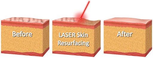 effect of laser on the skin
