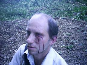 Избитый правозащитник Евгений Соловьев