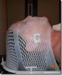 radiation mask 1