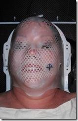 radiation mask 2