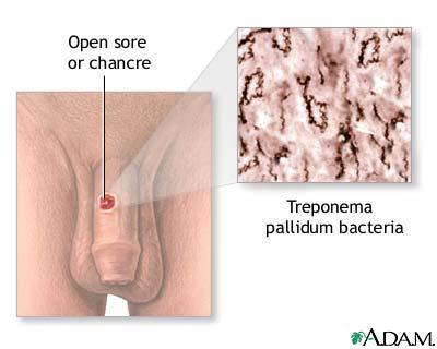 Doencas sexualmente transmissiveis sifilis