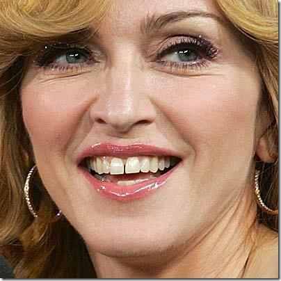 Separação-dos-dentes-centrais-não-é-sinônimo-de-beleza