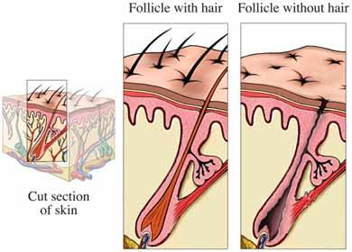 美容師は円形脱毛症の人に縮毛矯正をしないよう注意しましょう。