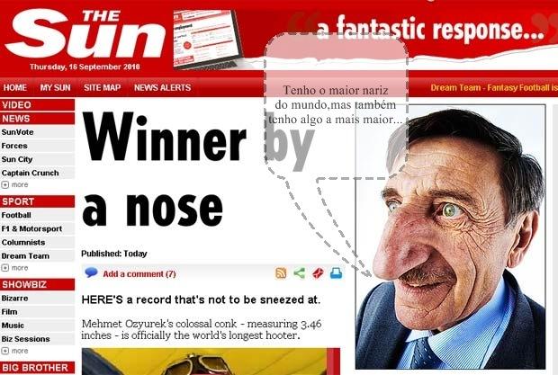 Com nariz de 8,8 cm, turco segue como maior narigudo do mundo