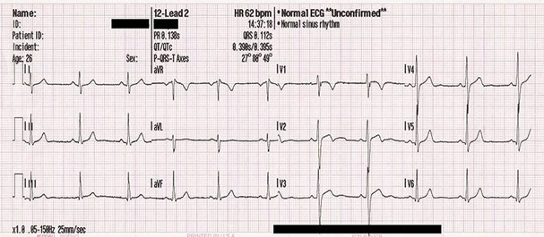 ECG Monitor: Photo Credit, Wikipedia