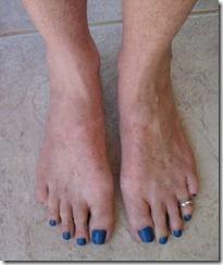Sunburnt feet resize