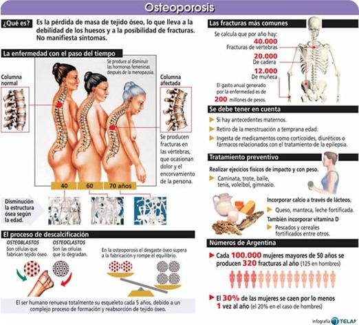 89995_osteoporosis