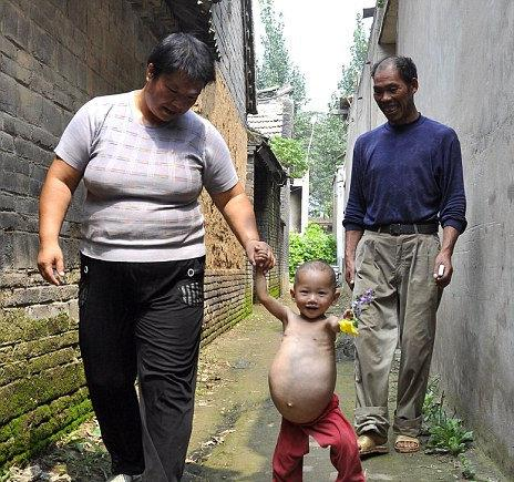 One year old Chinese girl pregnant -Now Worlds Youngest Mother