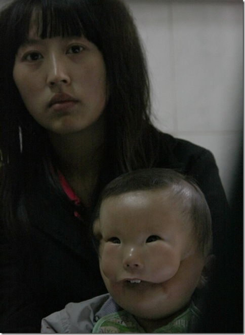 Transverse facial cleft  Boy Photo 1