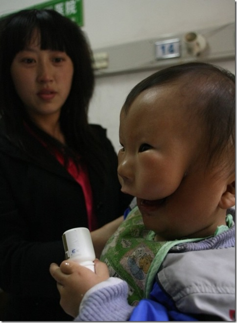 Transverse facial cleft  Boy Photo 3