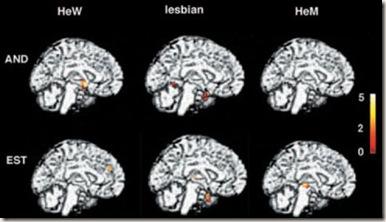 lesbian_brain