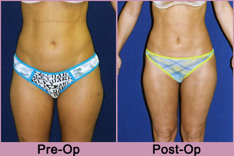 liposuction Indiana