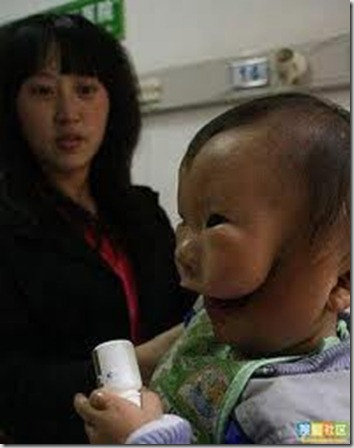 imagesChinese baby born with mask face 2