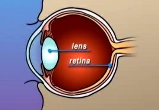 Reshaping of Cornea by Laser Eye Treatment