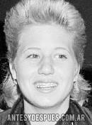 Chaz Bono, 1983