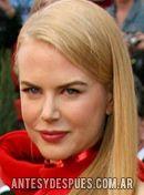 Nicole  Kidman,