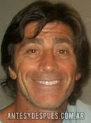 Nicolás Repetto, 2010