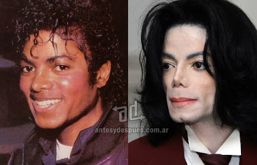 michael jackson antes y despues de la cirugia plastica