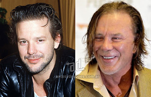 mickey rourke antes y despues de la cirugia plastica
