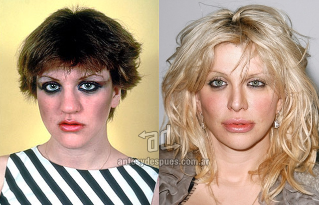 courtney love antes y despues de la cirugia plastica