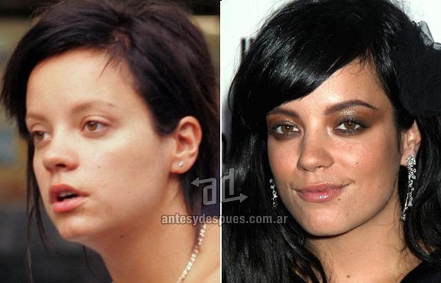 Lily Allen sin maquillaje