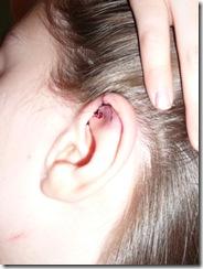 Kayleah's ear 2