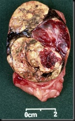 cushings-adrenal-adenoma