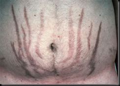 cushings-striae