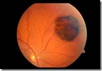 ocular_tumour_CHRPE