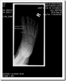 Foot xray0002 - edit copy
