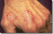 nummular_dermatitis_image1
