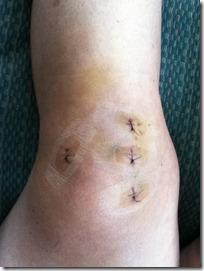 stitches 2-21