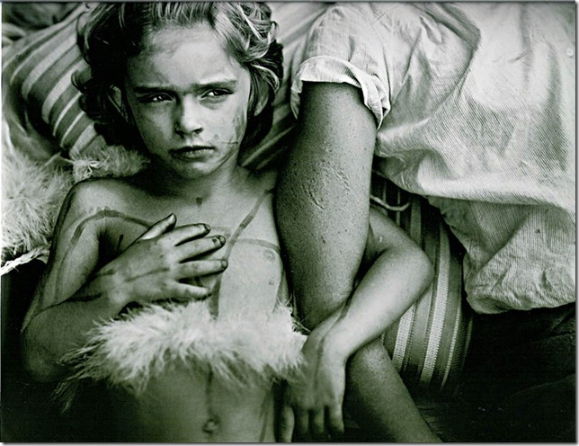 sally mann -bites